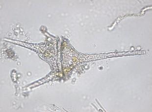Ceratium hirundinella, 400x