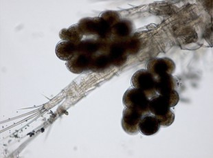 Eipakete (Copepode, Ruderfußkrebs), 100x